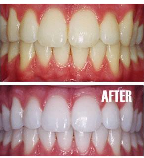 Minidentalku Bleaching Cara Mudah Memutihkan Gigi