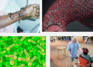 Virus-Ebola-Mematikan-Dunia