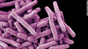 130916171253-drug-resistant-tuberculosis-story-top